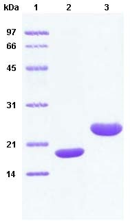 SDS-PAGE - Apolipoprotein D protein (His tag) (ab63849)