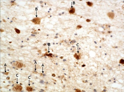 Immunohistochemistry (Formalin/PFA-fixed paraffin-embedded sections) - alpha A + alpha B Crystallin antibody (ab63998)