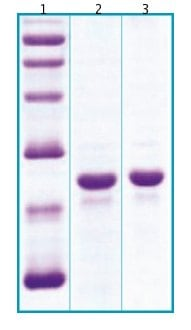 SDS-PAGE - FGF21 protein (His tag) (ab64004)