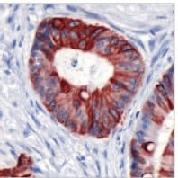 Immunohistochemistry (Formalin/PFA-fixed paraffin-embedded sections) - Cytokeratin 20 antibody [SP33] (ab64090)