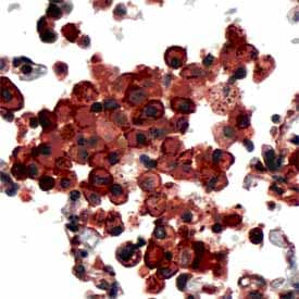 Immunohistochemistry (Formalin/PFA-fixed paraffin-embedded sections) - PDCD6 antibody (ab64151)