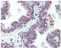 Immunohistochemistry (Formalin/PFA-fixed paraffin-embedded sections) - CBLN1 antibody (ab64184)