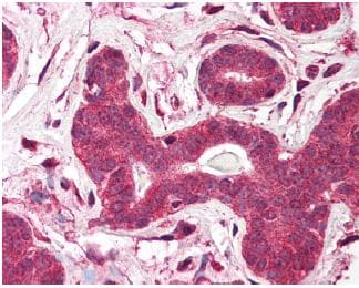 Immunohistochemistry (Formalin/PFA-fixed paraffin-embedded sections) - TEP1 antibody (ab64189)