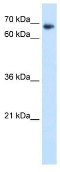 Western blot - TAF6 antibody (ab64423)