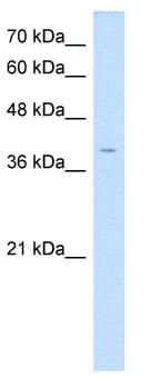 Western blot - LSAMP antibody (ab64427)
