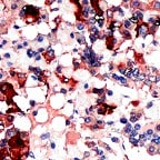 Immunohistochemistry (Formalin/PFA-fixed paraffin-embedded sections) - TSH antibody (ab64486)