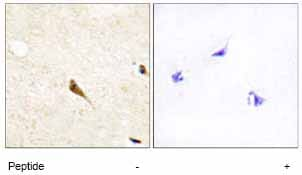 Immunohistochemistry (Formalin/PFA-fixed paraffin-embedded sections) - MOK protein kinase antibody (ab64815)