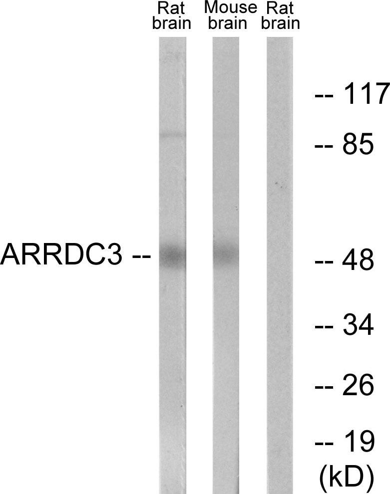 Western blot - ARRDC3 antibody (ab64817)