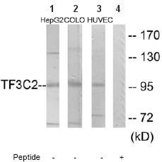 Western blot - GTF3C2 antibody (ab64842)