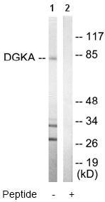 Western blot - DGKA antibody (ab64845)