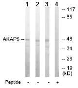 Western blot - AKAP5 antibody (ab64851)