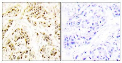 Immunohistochemistry (Formalin/PFA-fixed paraffin-embedded sections) - FEN1 antibody (ab64908)