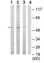 Western blot - ETV6 / Tel  antibody (ab64909)
