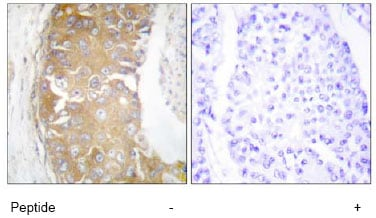 Immunohistochemistry (Formalin/PFA-fixed paraffin-embedded sections) - FRK antibody (ab64914)