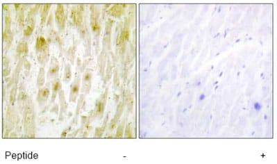 Immunohistochemistry (Formalin/PFA-fixed paraffin-embedded sections) - TFIIE beta antibody (ab64932)