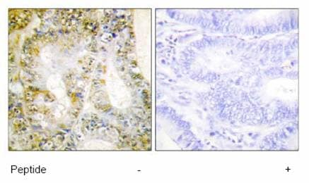 Immunohistochemistry (Formalin/PFA-fixed paraffin-embedded sections) - beta Catenin antibody (ab64944)