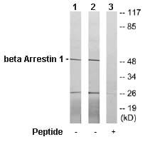 Western blot - beta Arrestin 1 antibody (ab64999)