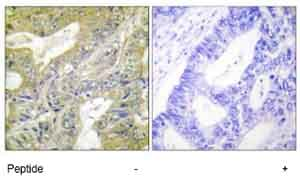 Immunohistochemistry (Formalin/PFA-fixed paraffin-embedded sections) - HEXB antibody (ab65001)