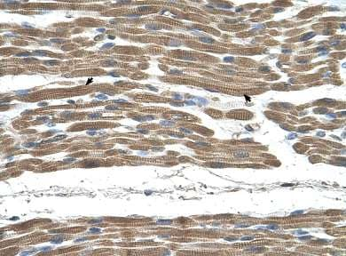 Immunohistochemistry (Formalin/PFA-fixed paraffin-embedded sections) - STIP1 antibody (ab65046)