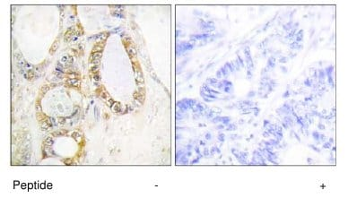 Immunohistochemistry (Formalin/PFA-fixed paraffin-embedded sections) - MUC13 antibody (ab65109)