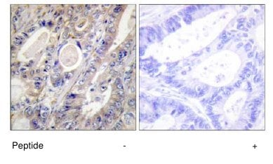 Immunohistochemistry (Formalin/PFA-fixed paraffin-embedded sections) - BCAR3 antibody (ab65111)