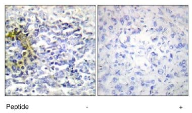 Immunohistochemistry (Formalin/PFA-fixed paraffin-embedded sections) - FXR2 antibody (ab65122)