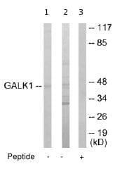 Western blot - GALK1 antibody (ab65123)