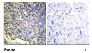 Immunohistochemistry (Formalin/PFA-fixed paraffin-embedded sections) - ICAD  antibody (ab65129)
