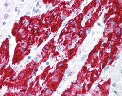 Immunohistochemistry (Formalin/PFA-fixed paraffin-embedded sections) - IEX1 antibody (ab65152)
