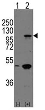 Western blot - P cadherin antibody - Carboxyterminal end (ab65599)