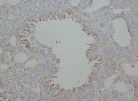 Immunohistochemistry (Formalin/PFA-fixed paraffin-embedded sections) - RAGE antibody (ab65965)
