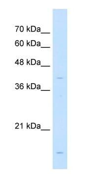 Western blot - LMAN2 antibody (ab66029)