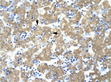 Immunohistochemistry (Formalin/PFA-fixed paraffin-embedded sections) - ACAT2 antibody (ab66259)