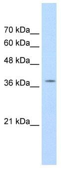 Western blot - RALY antibody (ab66263)