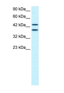 Western blot - NY-REN-50 antigen antibody (ab66345)