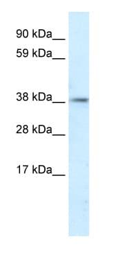 Western blot - PSMD11 antibody (ab66346)