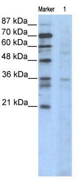 Western blot - Cyclin B3 antibody (ab66384)