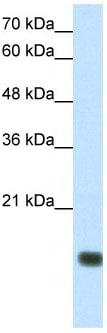 Western blot - TGIF2LY antibody (ab66386)