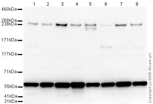 Western blot - Chromodomain helicase DNA binding protein 5 antibody (ab66516)