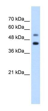 Western blot - GTPBP2 antibody (ab66519)
