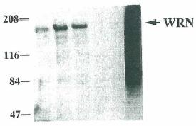 Western blot - Werner's syndrome helicase WRN antibody [8H3] - Aminoterminal end (ab66601)