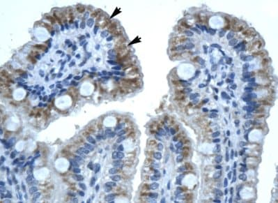 Immunohistochemistry (Formalin/PFA-fixed paraffin-embedded sections) - Connexin 32 / GJB1 antibody (ab66613)