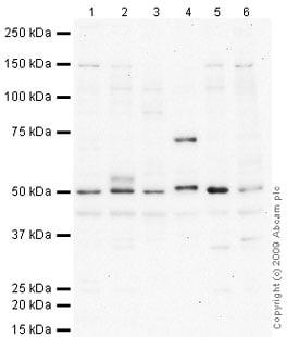 Western blot - HYAL2 antibody (ab66653)