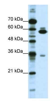 Western blot - ZNF446 antibody (ab66657)