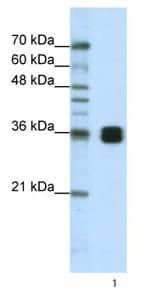 Western blot - HNRNPA0 antibody (ab66661)