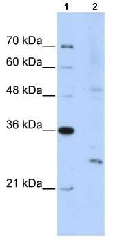 Western blot - EXOSC4 antibody (ab66672)