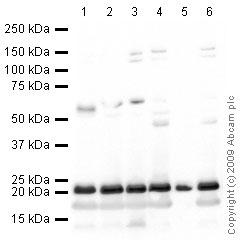 Western blot - Anti-SOCS2  antibody (ab66733)