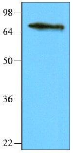 Western blot - NSD3 antibody [2E9] (ab66745)