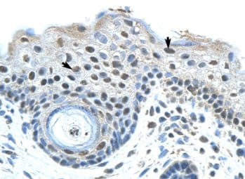 Immunohistochemistry (Formalin/PFA-fixed paraffin-embedded sections) - SAP155 antibody (ab66774)