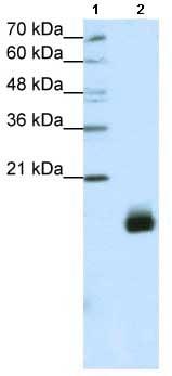 Western blot - RPS14 antibody (ab66778)